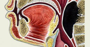 Халқум орти абсцесси — болалардаги хавфли касаллик.