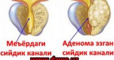 Простата аденомаси – кандай БЕЛГИЛАР булади?