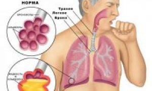 Пневмония – ўпка яллиғланиши