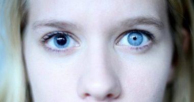 Анизокория – икки хил қорачиқ.