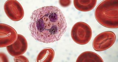 Агранулоцитоз – яширин кечувчи оғир касаллик (2-қисм).
