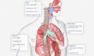 Коронавирус 3D: касаллик белгилари кўриниши
