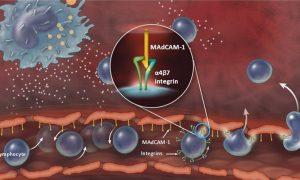 Яна бир оғир иммун етишмовчилиги — ЛАД